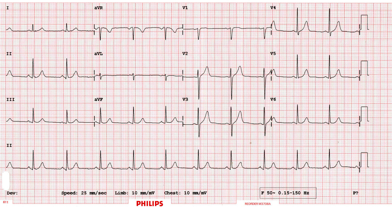 Math of ECGs: Fourier Series